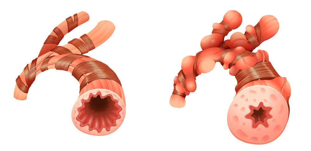 Representation of pulmonary arteries, a normal one and an inflamed one.